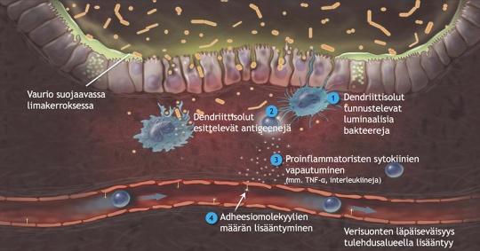 Tulehduksellisten suolistosairauksien tyypillinen ominaispiirre on ylimääräisten lymfosyyttien kertyminen limakalvoon.